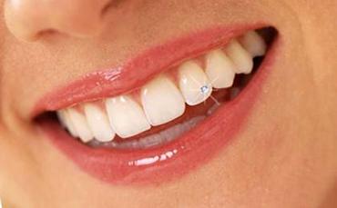 Változások a fogászati kezelésekben
